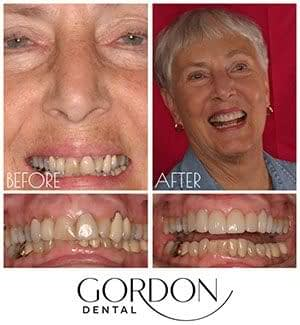 full mouth reconstruction upper before and after Kansas City, MO