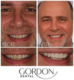 middle aged male patient smiling with veneers Kansas City, MO