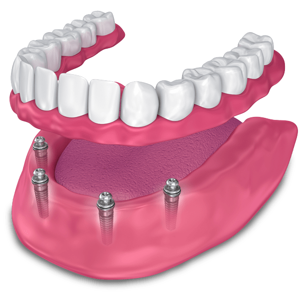 implant supported dentures model Kansas City, MO