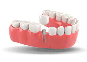 dental-implants-menu