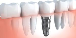 Dental-Implants-Hero
