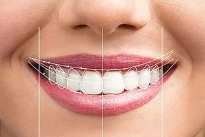 smile-design-graphic