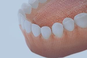 Gum-disease-poster