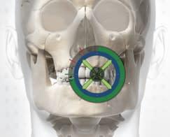 X-Nav-X-Guide-Skull-243x300
