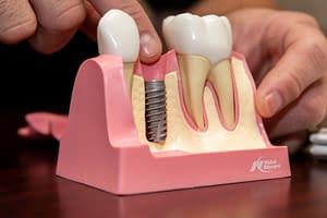 Dental Implants in your Bone, Model