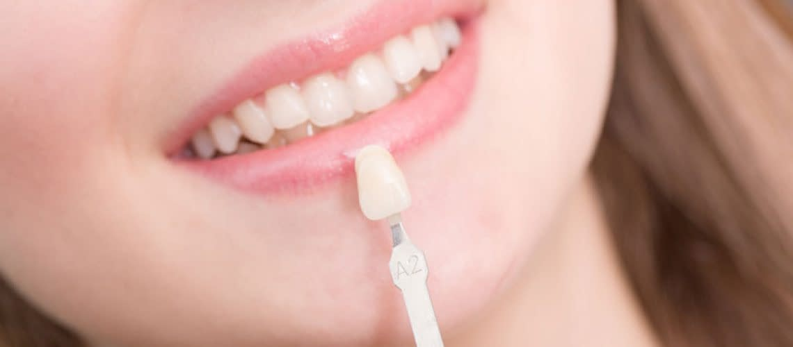 Dental Veneer Patient