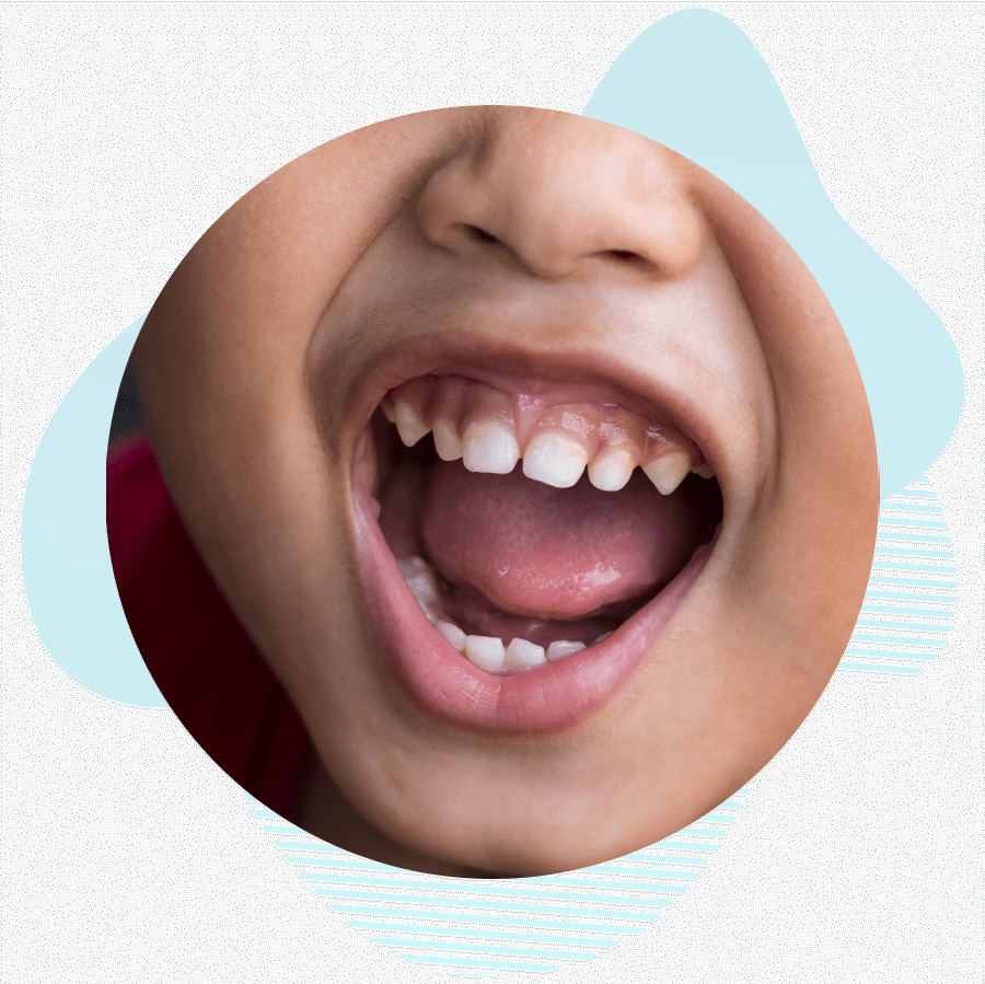 dental patient in need of a frenectomy