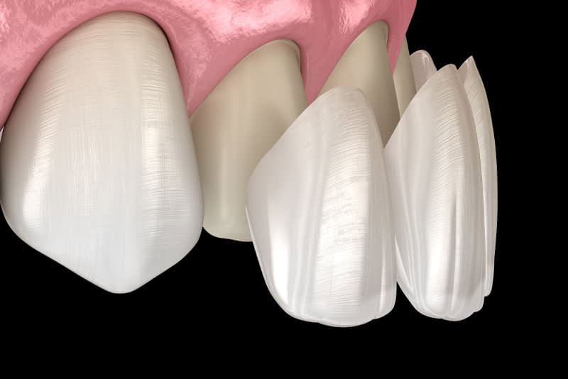 porcelain veneers graphic
