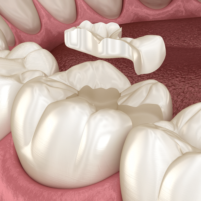 dental inlay graphic