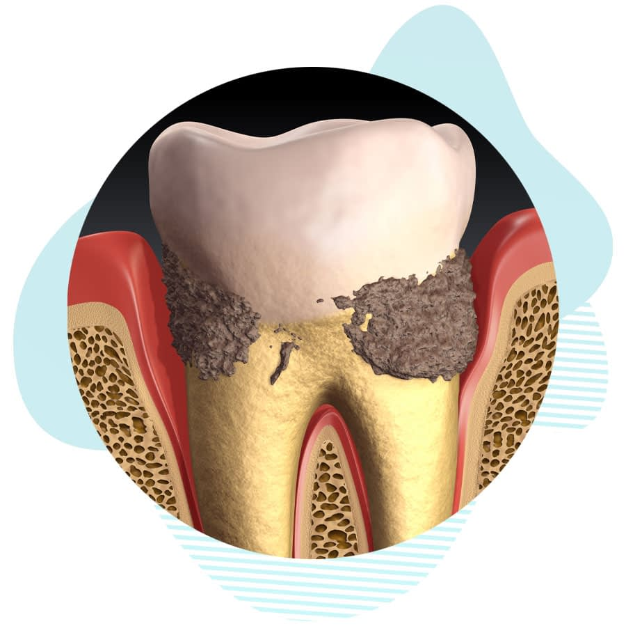 periodontal pockets graphic