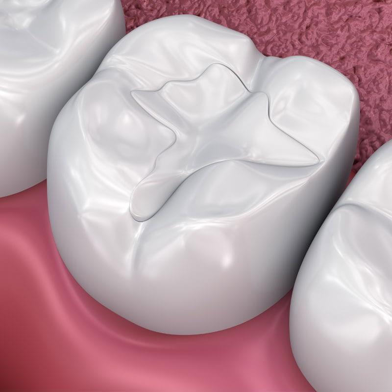 dental filling graphic