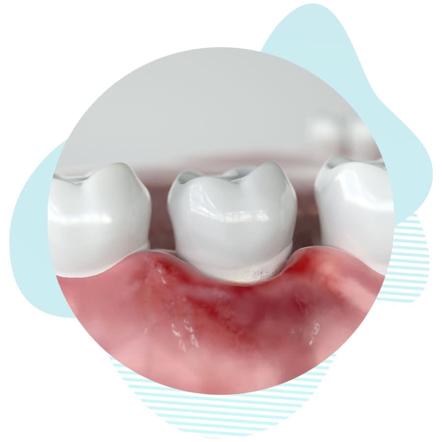 peri implantitis treatment graphic