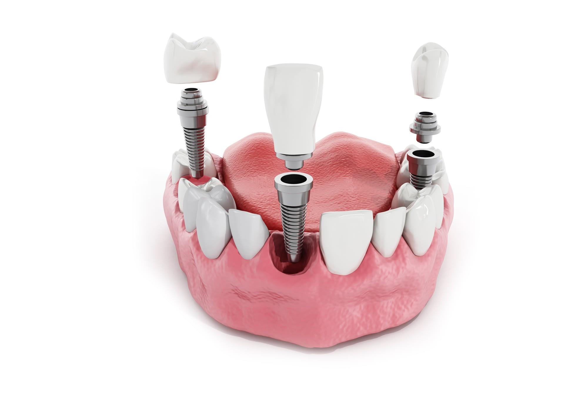 Implant Model Brownstown, MI