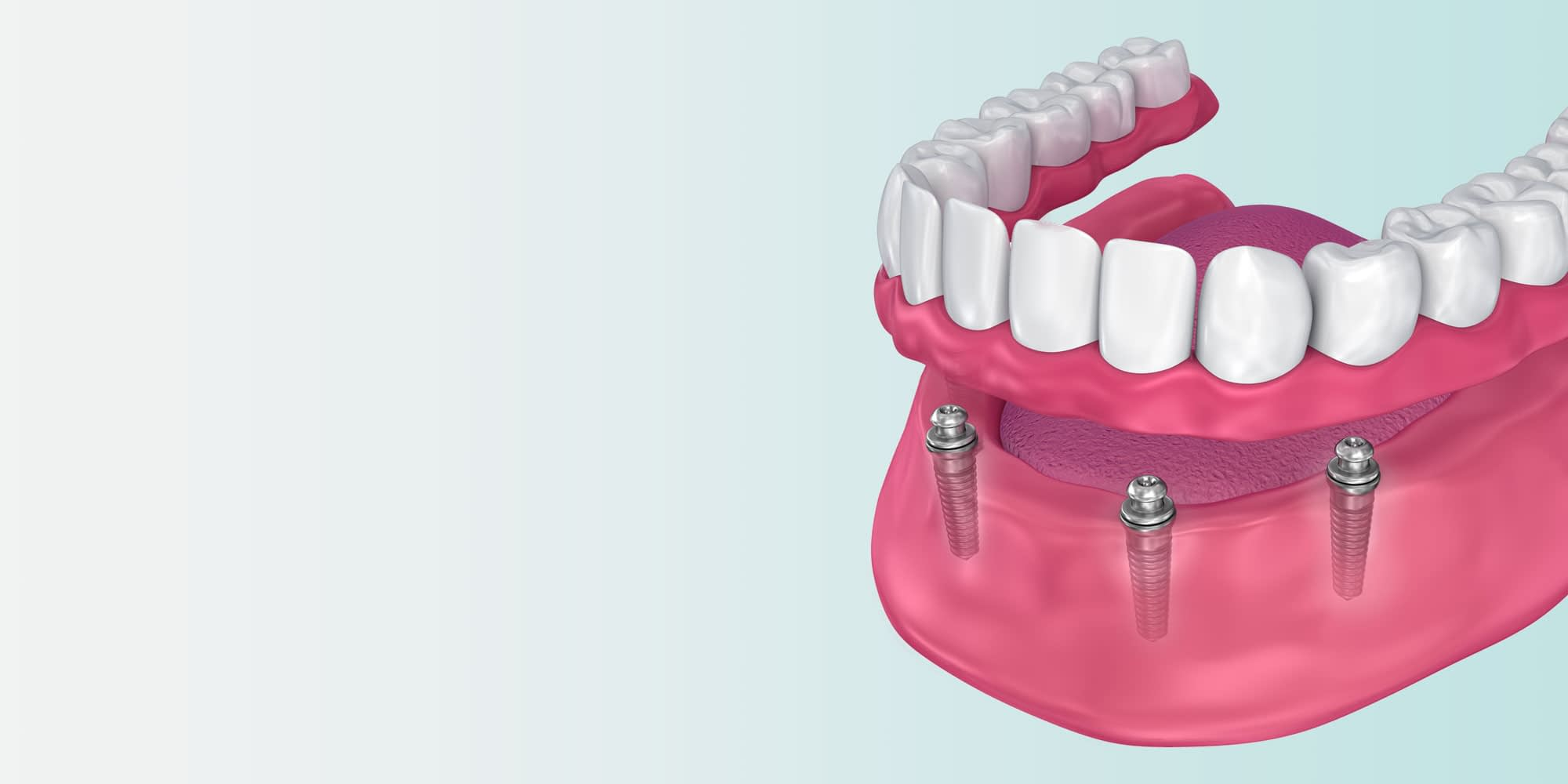 implant supported dentures model Brownstown, MI