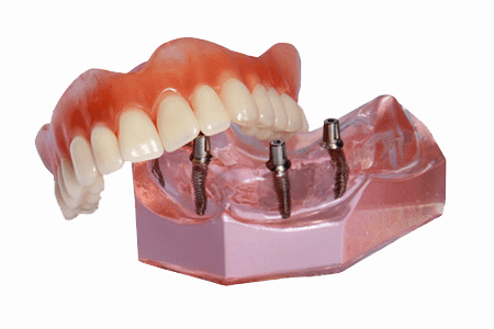 implant supported denture model Brownstown, MI