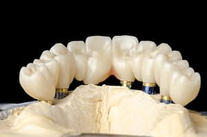 Full Arch Dental Implant