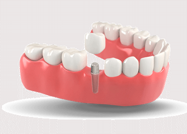 model of a placed dental implant