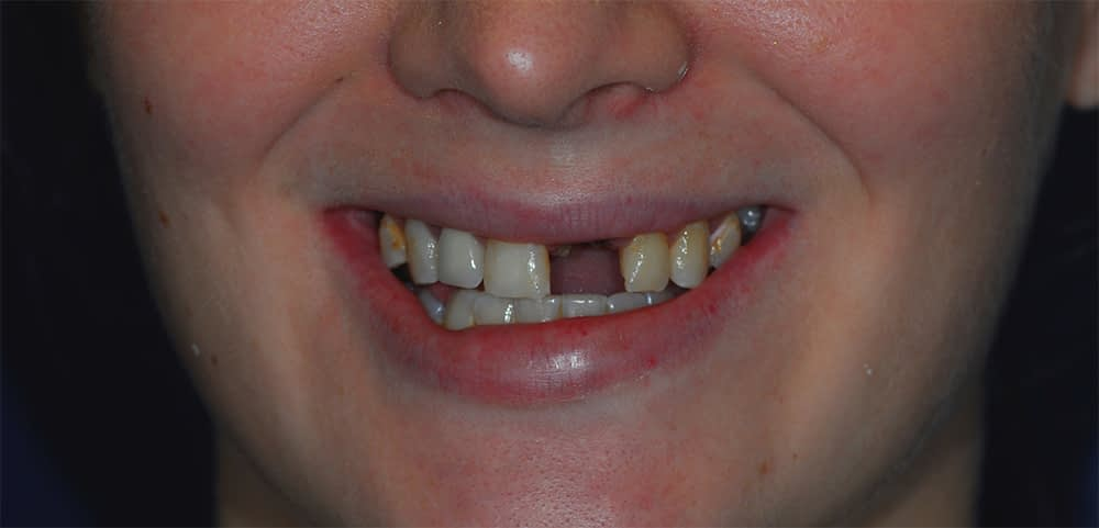 patient smiling with missing front tooth