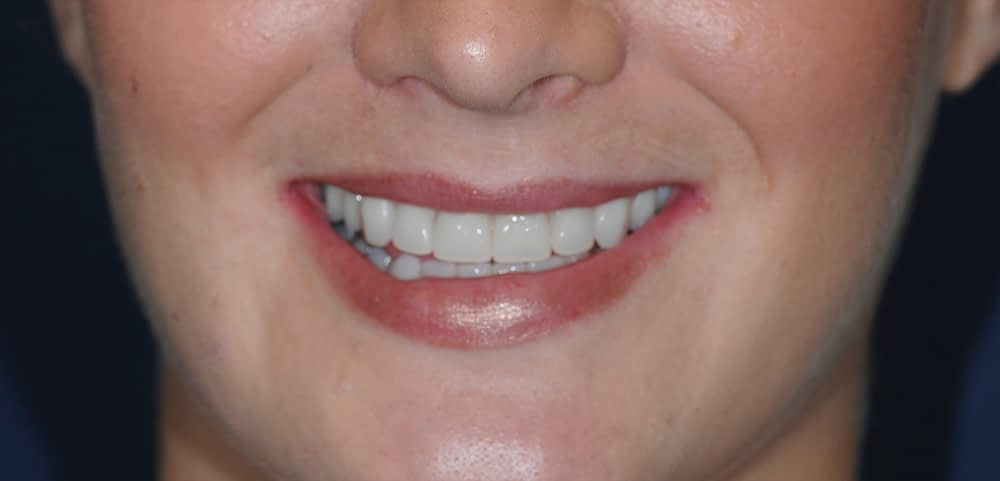 female patient smiling with implant supported dentures