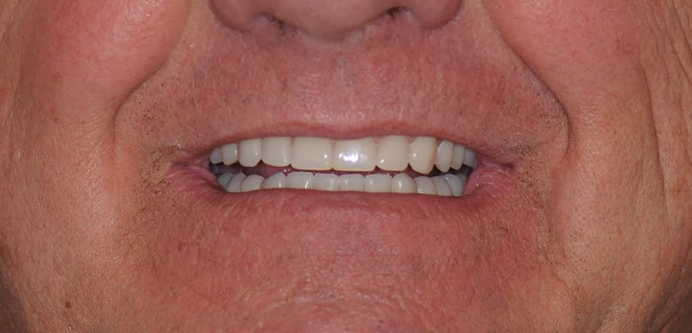 male patient smiling after teethxpress dental implants