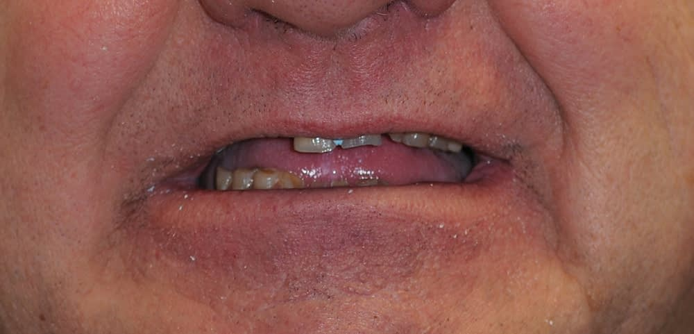 male smiling before dental implants