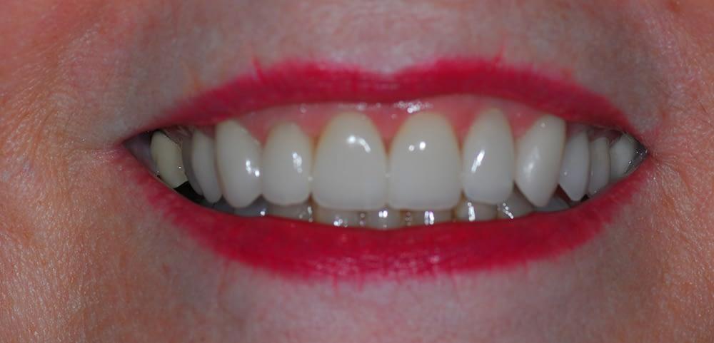 female smile after porcelain veneers