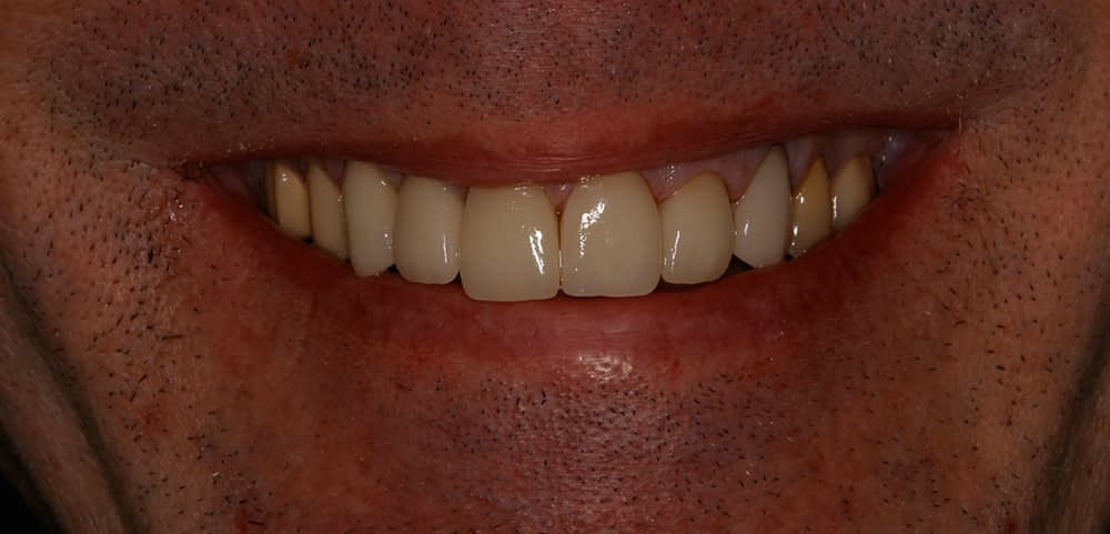 teeth after upper crowns