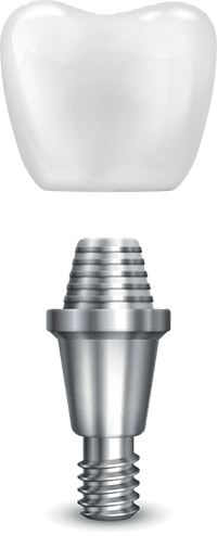 the three componants of a dental implant