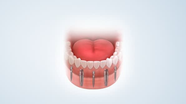 dental implants animation