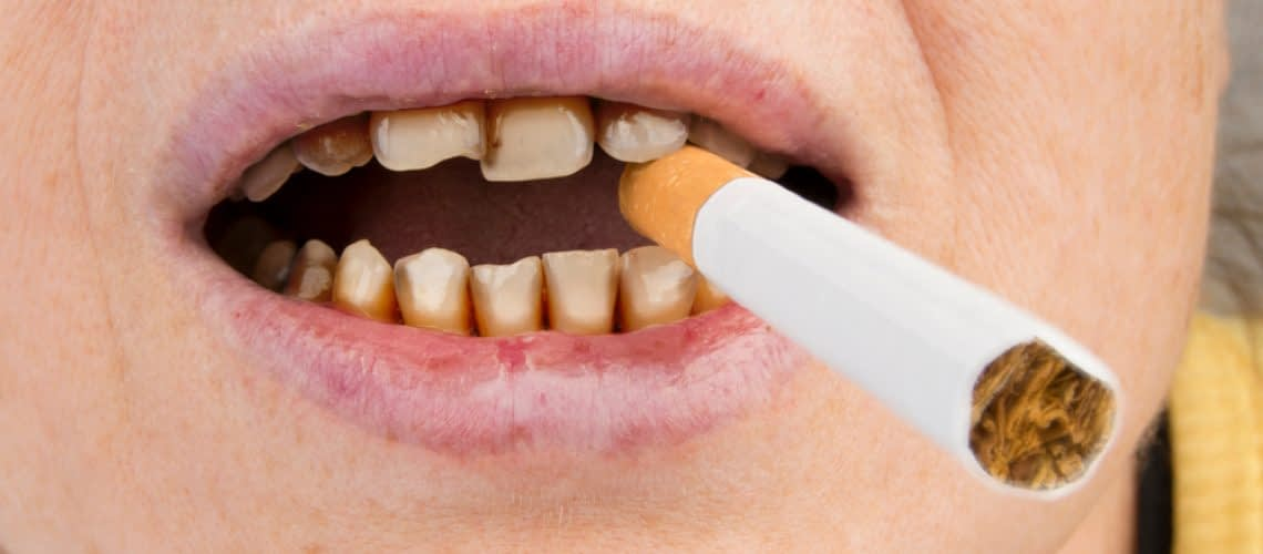 Tobacco And The Teeth