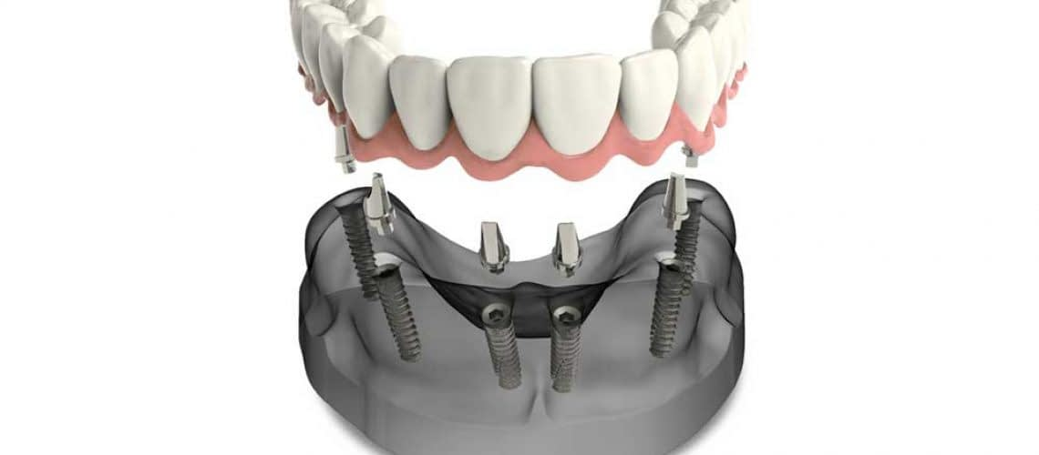 a model of implant supported dentures