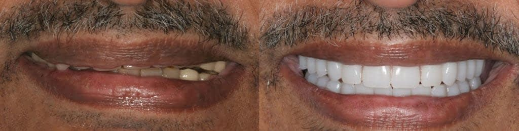 implant bridge before and after