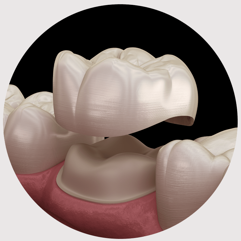dental crowns model