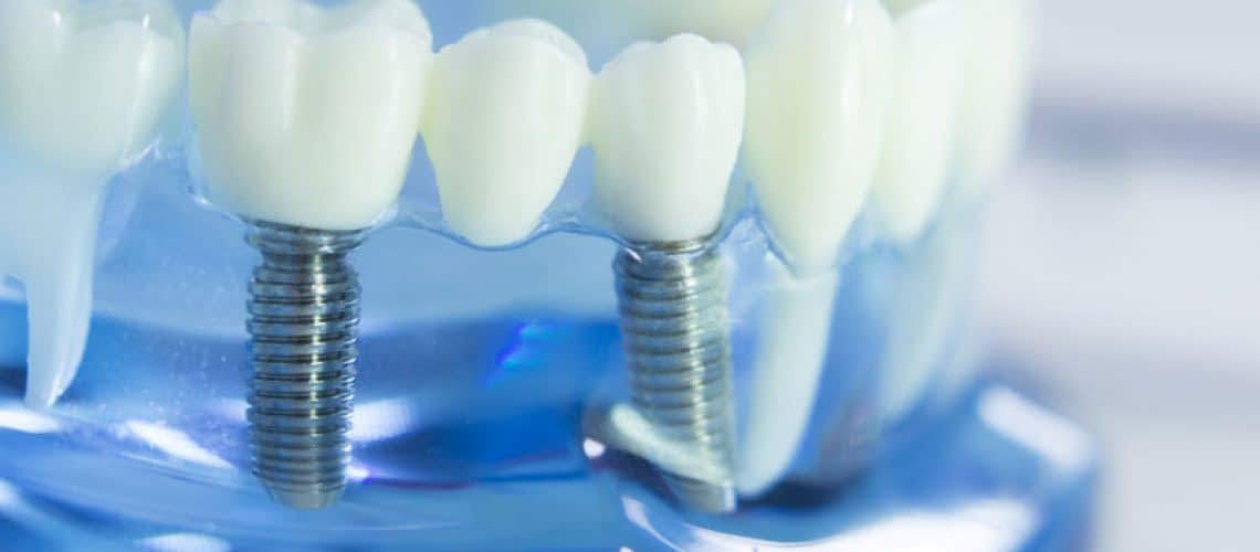 Dental Implant in a Model