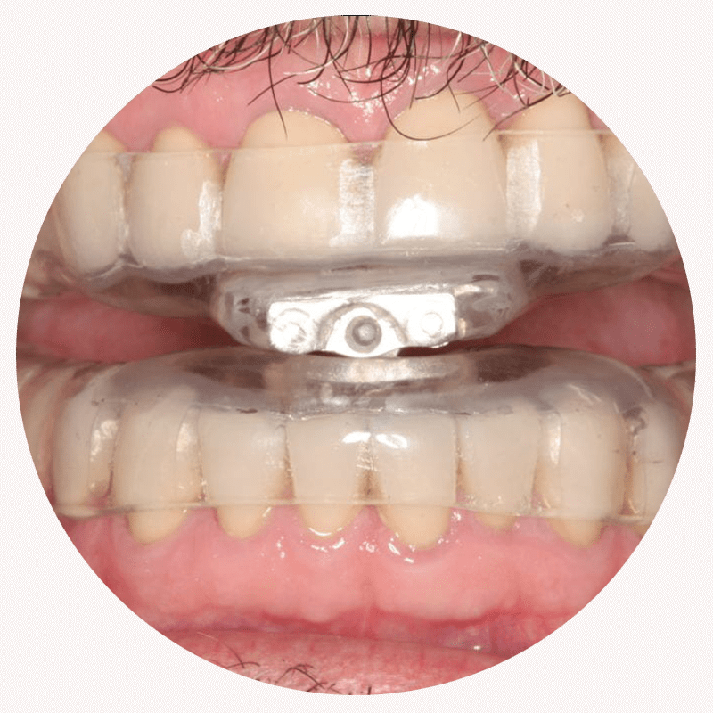 mouthguard for sleep apnea