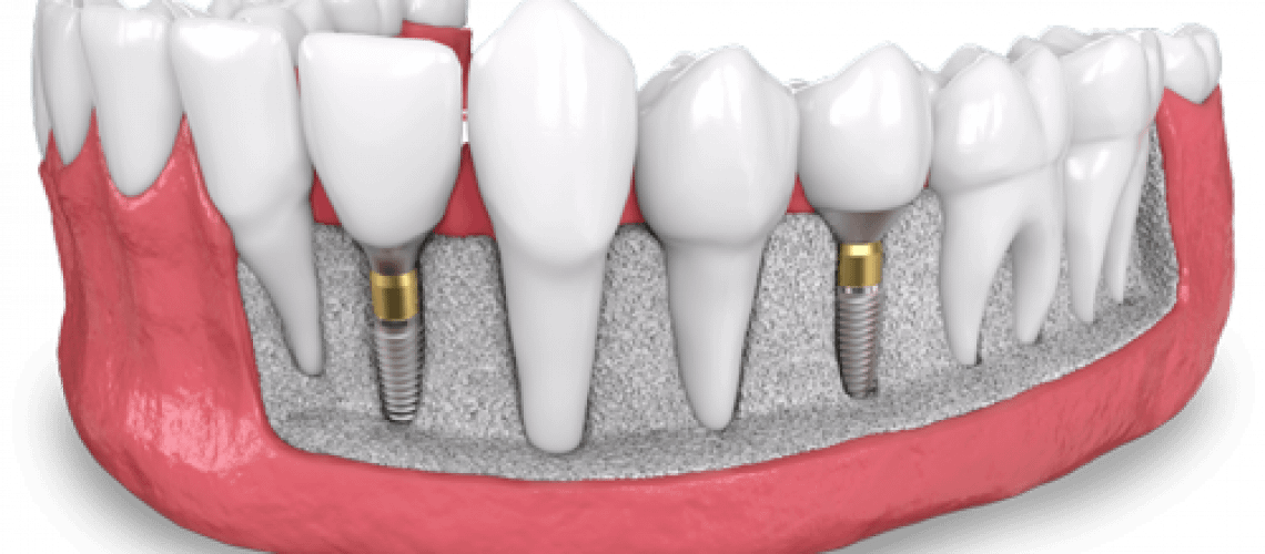 a model of two placed dental implants