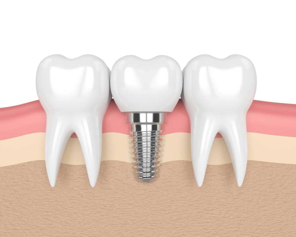 a diagram of a placed dental implant