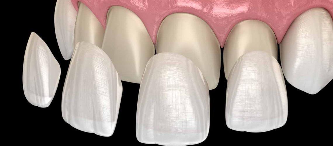 a diagram of porcelain veneers being placed on teeth