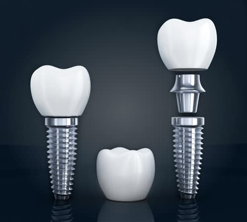 the three different parts of a placed dental implant