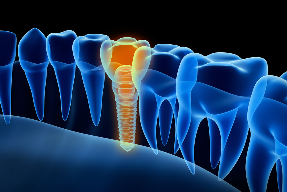 digital graphic of a placed dental implant