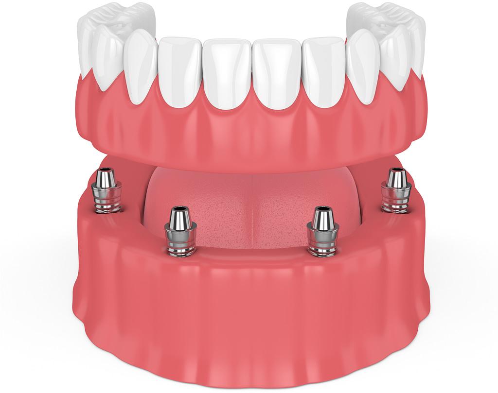 full arch dental implants Austin tx