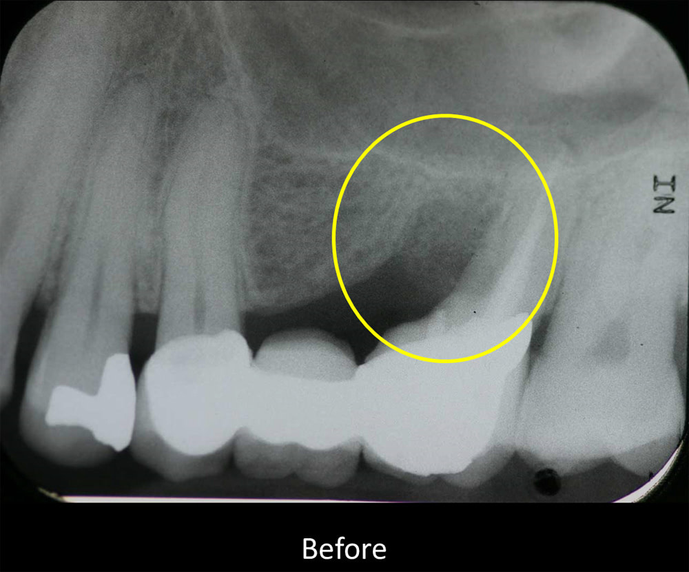 x-ray view of a failing dental bridge with a periodontal pocket