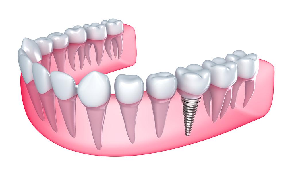 single dental implant austin tx