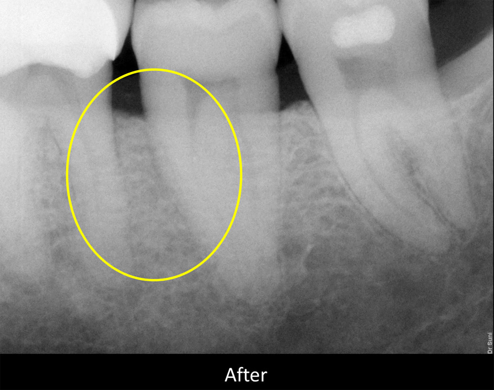 x-ray view of a periodontal pocket after periodontal treatment and a bone graft