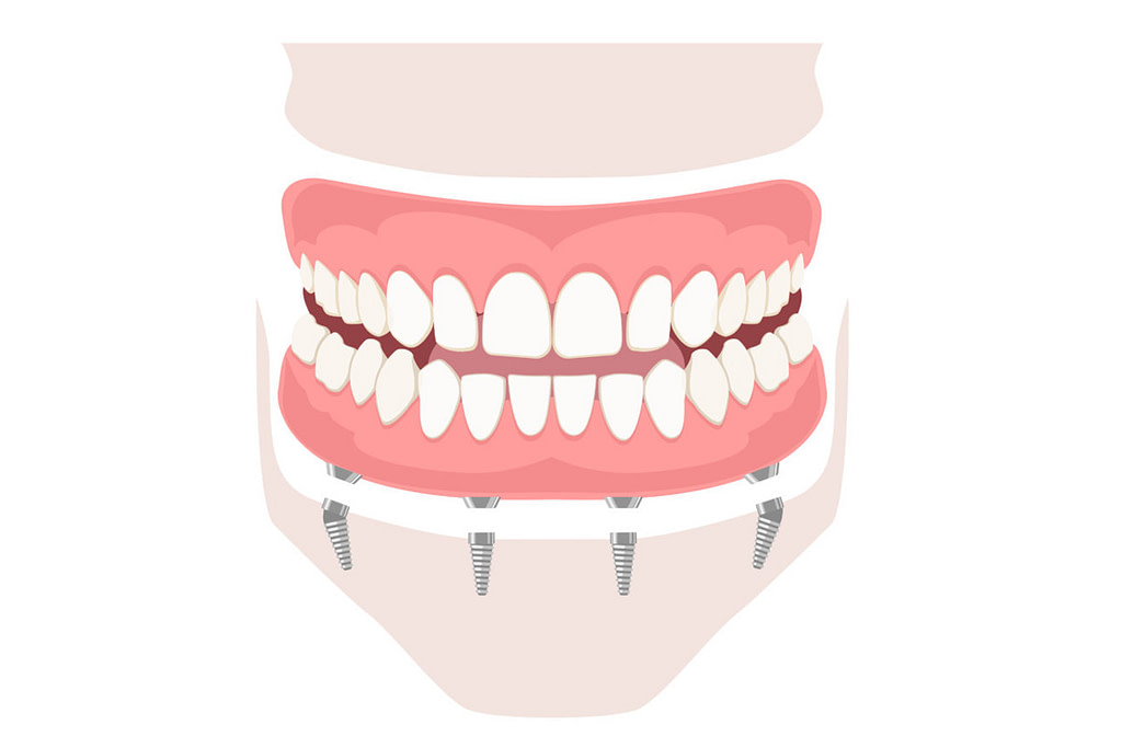 best full arch dental implants smile makeover