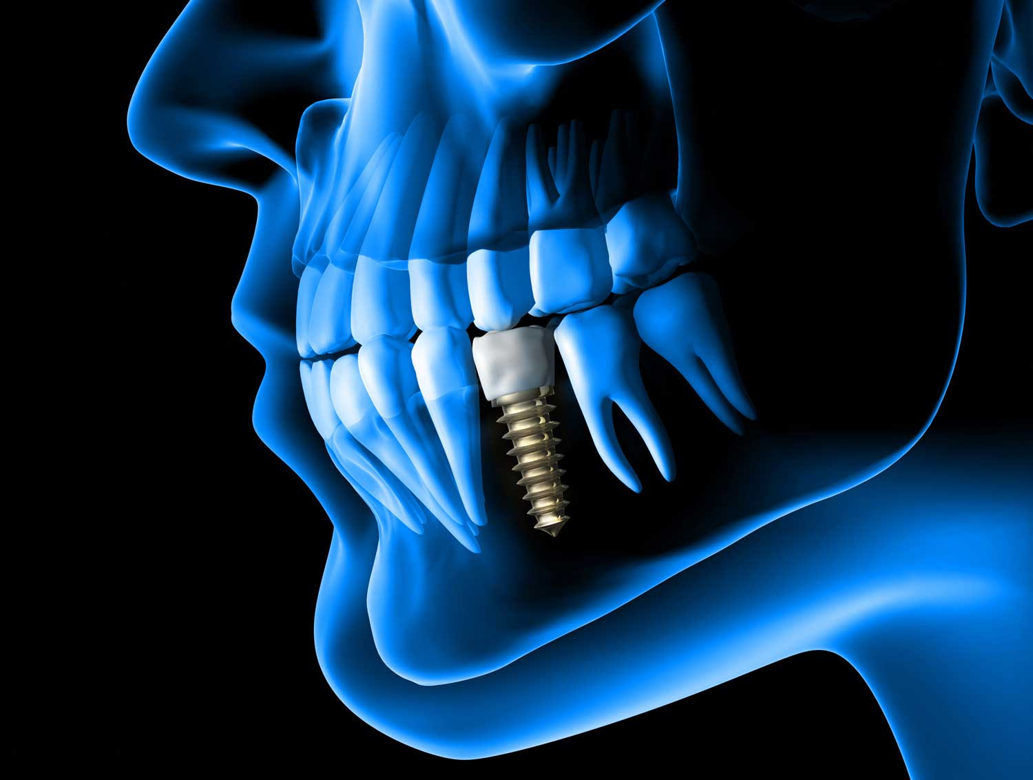 x-ray view of a placed dental implant