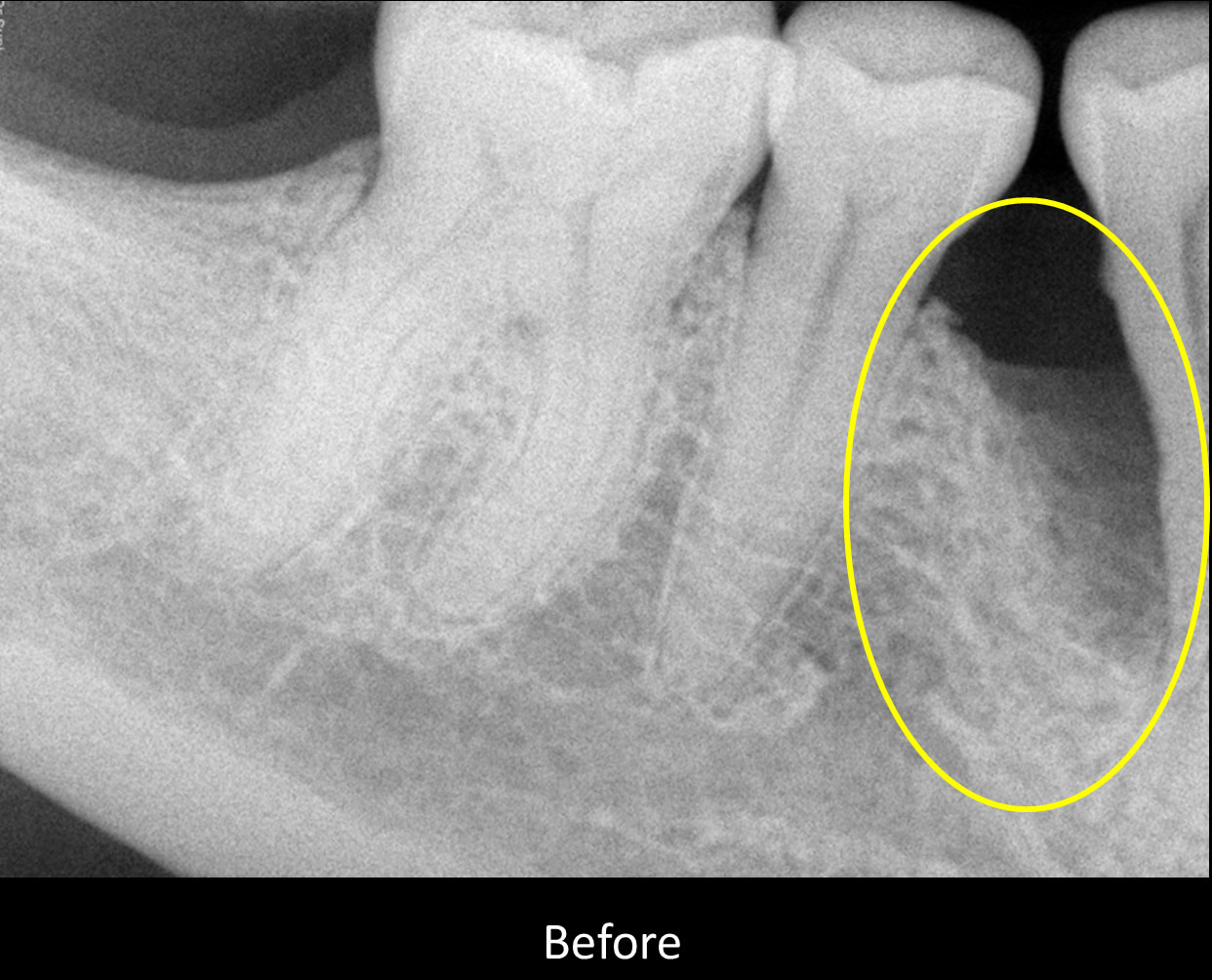 x-ray view of a periodontal pocket before periodontal treatment and bone grafting