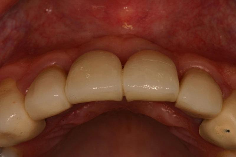 dental implants after