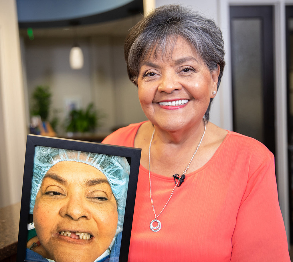 patient holding a photo of her smiling before she had full arch dental implants