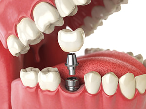 model of a dental implant being placed